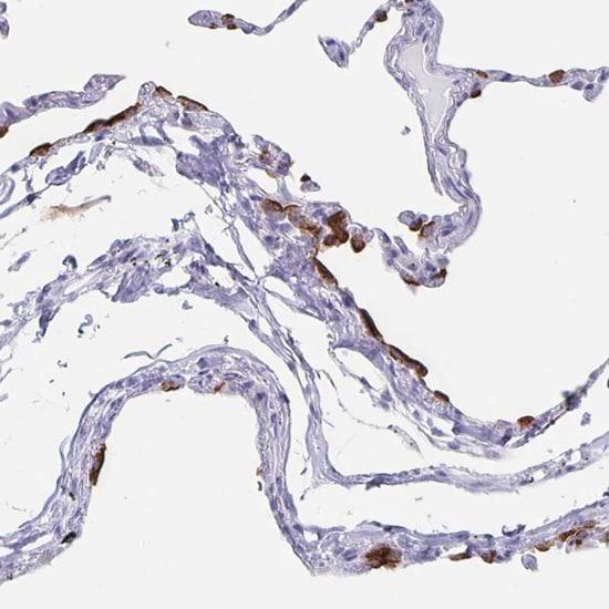 Immunohistochemistry (Formalin/PFA-fixed paraffin-embedded sections) - Anti-SLC34A2 antibody (ab122431)