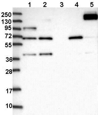 Western blot - Anti-FAM13A antibody (ab122440)