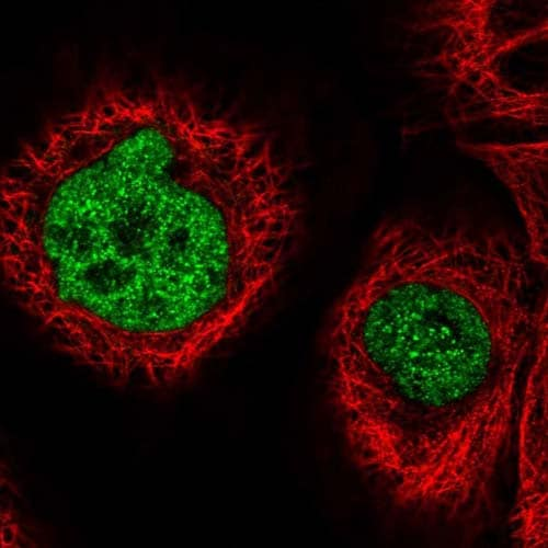 Immunocytochemistry/ Immunofluorescence - Anti-ST7 antibody (ab122459)