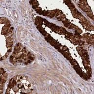 Immunohistochemistry (Formalin/PFA-fixed paraffin-embedded sections) - Anti-CEP295 antibody (ab122490)