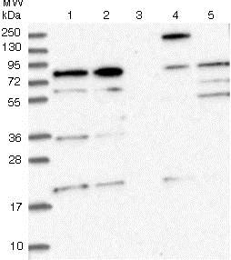 Western blot - Anti-CEP295 antibody (ab122490)