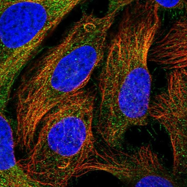 Immunocytochemistry/ Immunofluorescence - Anti-CEP295 antibody (ab122490)