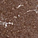Immunohistochemistry (Formalin/PFA-fixed paraffin-embedded sections) - Anti-GRIP1 antibody (ab122514)