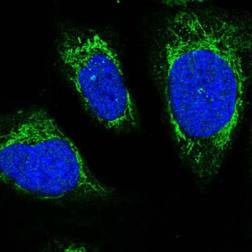 Immunocytochemistry/ Immunofluorescence - Anti-C12orf73 antibody (ab122516)