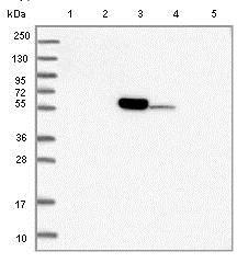 Western blot - Anti-C11orf80 antibody (ab122519)