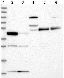 Western blot - Anti-RSPH3 antibody (ab122535)