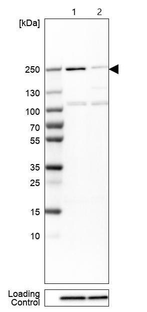 Western blot - Anti-SMCHD1 antibody (ab122555)