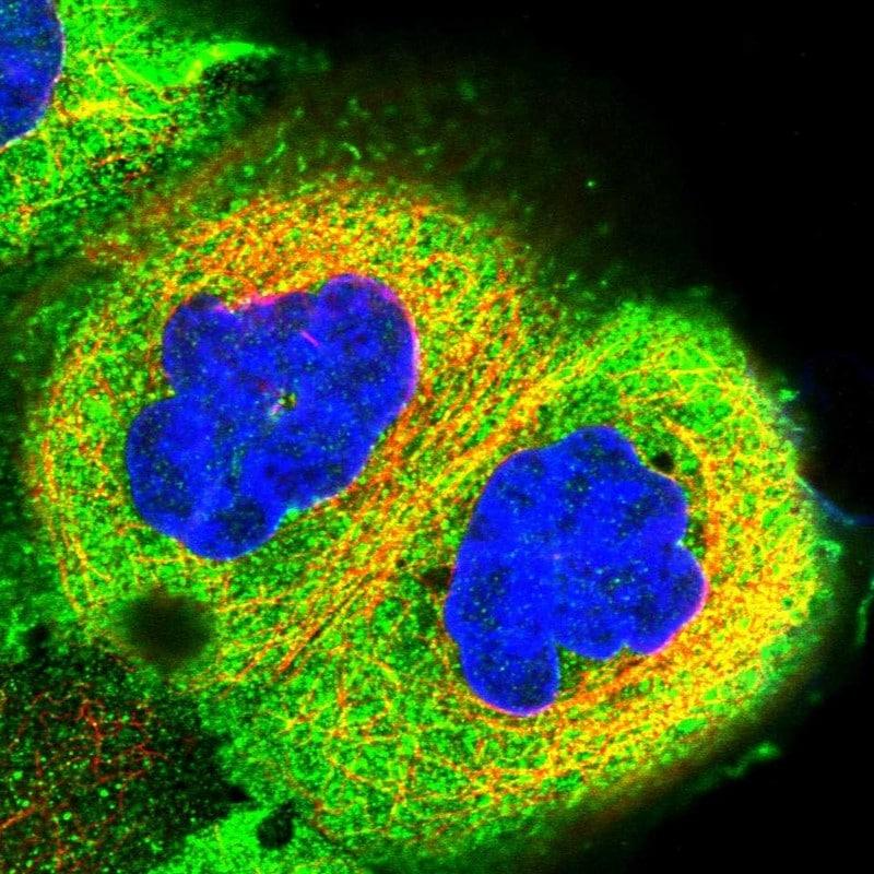 Immunocytochemistry - Anti- RCCD1 antibody (ab122570)