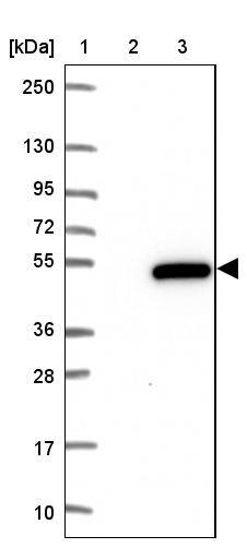 Western blot - Anti- RCCD1 antibody (ab122570)