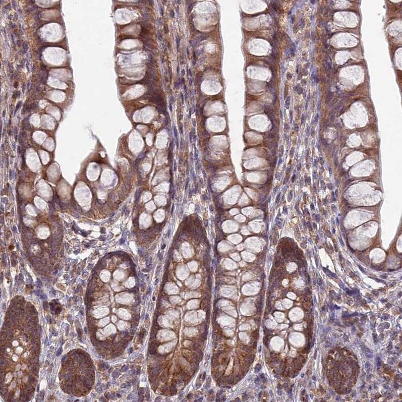 Immunohistochemistry (Floating vibratome sections) - Anti- RCCD1 antibody (ab122570)
