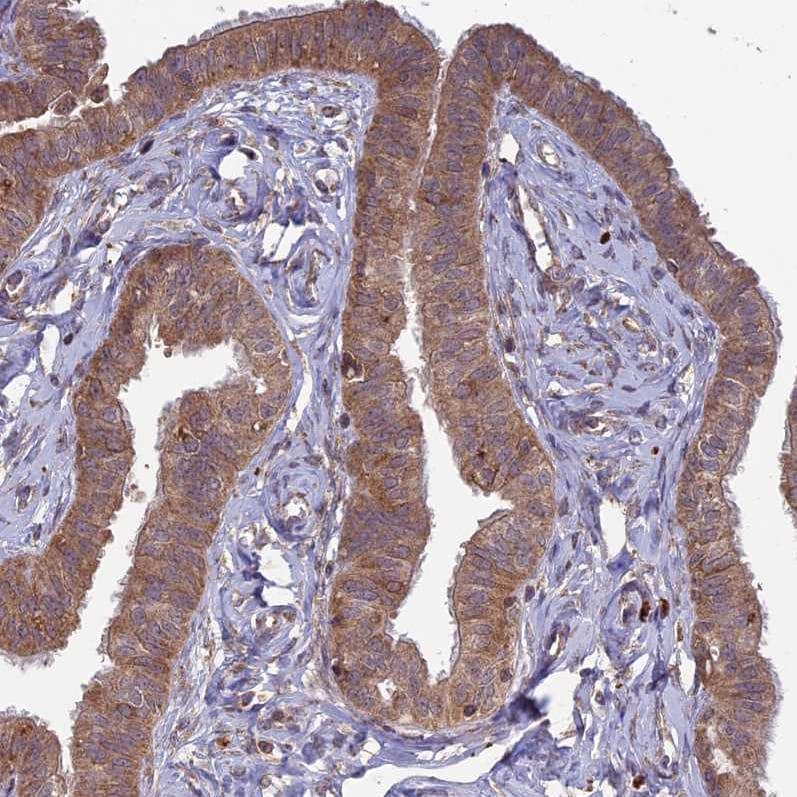 Immunohistochemistry (Formalin/PFA-fixed paraffin-embedded sections) - Anti- RCCD1 antibody (ab122570)