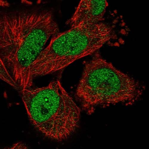 Immunocytochemistry/ Immunofluorescence - Anti-DNHD1 antibody (ab122574)