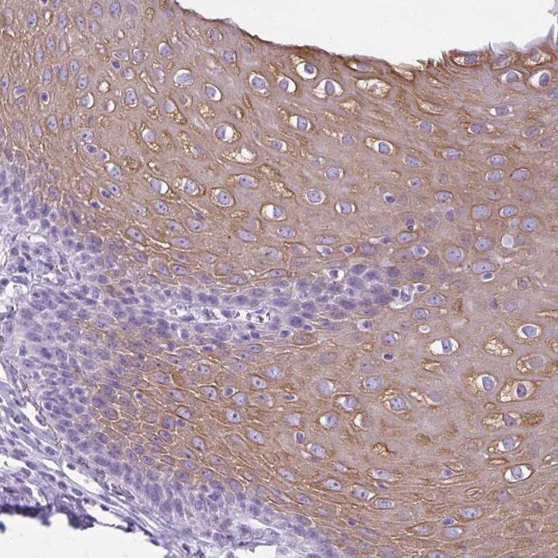 Immunohistochemistry (Formalin/PFA-fixed paraffin-embedded sections) - Anti-K78 antibody (ab122578)