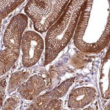 Immunohistochemistry (Formalin/PFA-fixed paraffin-embedded sections) - Anti-SVIP antibody (ab122590)