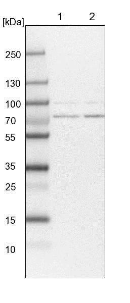 Western blot - Anti-PIGB antibody (ab122603)