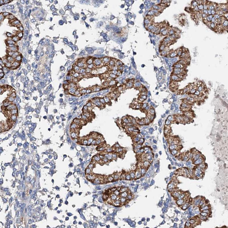 Immunohistochemistry (Formalin/PFA-fixed paraffin-embedded sections) - Anti-FIBIN antibody (ab122621)