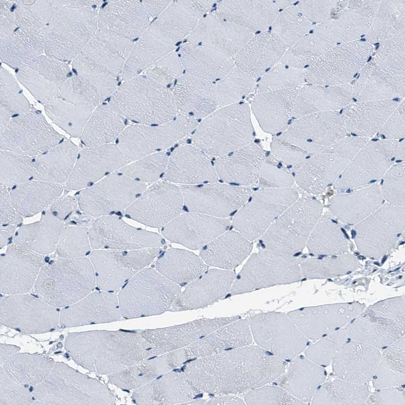 Immunohistochemistry (Formalin/PFA-fixed paraffin-embedded sections) - Anti-C12orf34 antibody (ab122626)