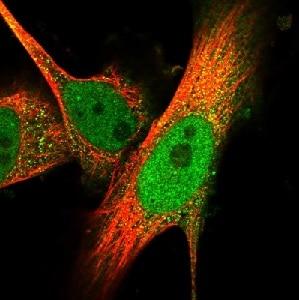 Immunocytochemistry/ Immunofluorescence - Anti-Asef2 antibody (ab122627)