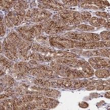 Immunohistochemistry (Formalin/PFA-fixed paraffin-embedded sections) - Anti-Sec24C antibody (ab122633)