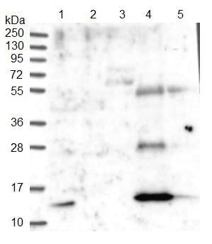 Western blot - Anti-PLAC8 antibody (ab122652)