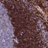 Immunohistochemistry (Formalin/PFA-fixed paraffin-embedded sections) - Anti-PLAC8 antibody (ab122652)