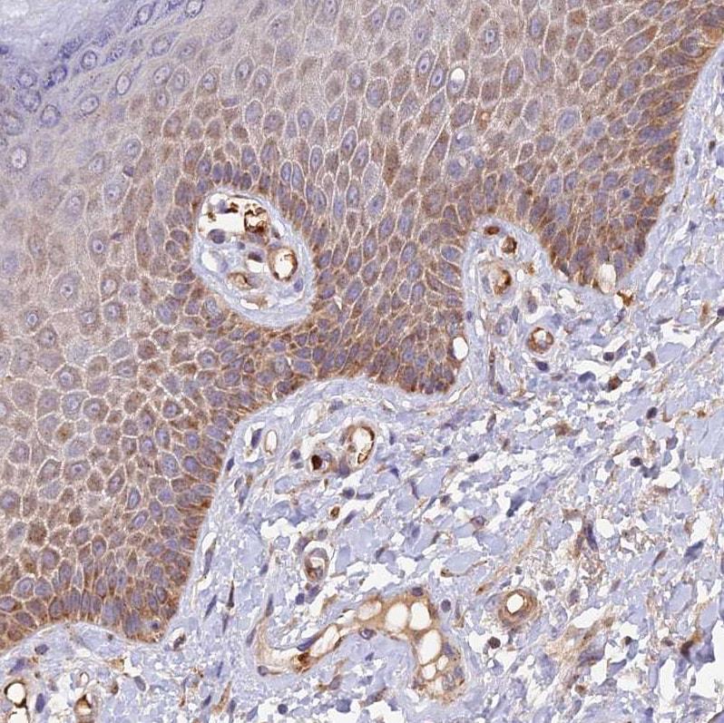 Immunohistochemistry (Formalin/PFA-fixed paraffin-embedded sections) - Anti-WDFY4 antibody (ab122661)