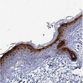 Immunohistochemistry (Formalin/PFA-fixed paraffin-embedded sections) - Anti-CALML5 antibody (ab122665)