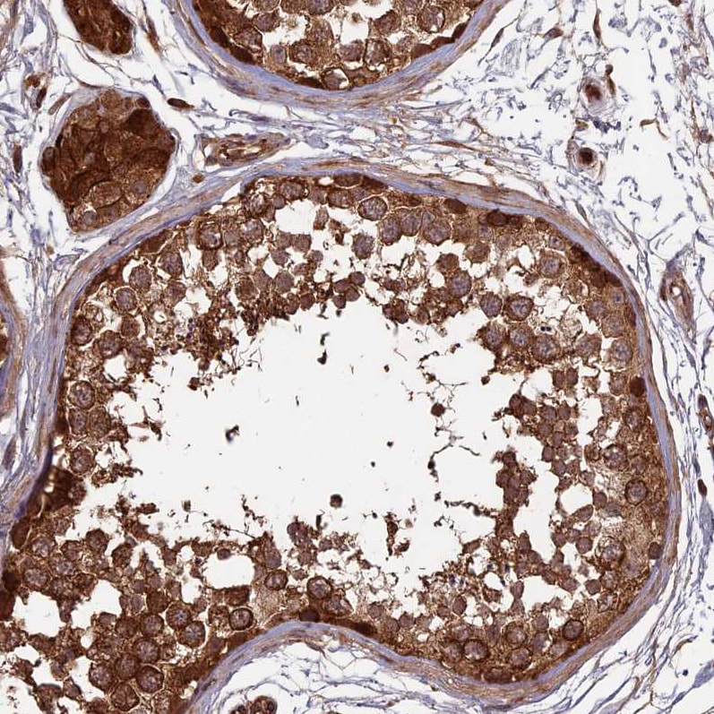 Immunohistochemistry (Formalin/PFA-fixed paraffin-embedded sections) - Anti- RCCD1 antibody (ab122667)