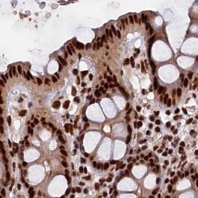 Immunohistochemistry (Formalin/PFA-fixed paraffin-embedded sections) - Anti-ZC3H18 antibody (ab122673)