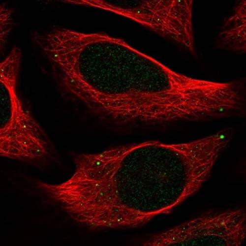 Immunocytochemistry/ Immunofluorescence - Anti-C18orf32 antibody (ab122677)