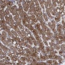 Immunohistochemistry (Formalin/PFA-fixed paraffin-embedded sections) - Anti-VPS37D antibody (ab122683)