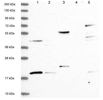 Western blot - Anti-RMI2 antibody (ab122685)