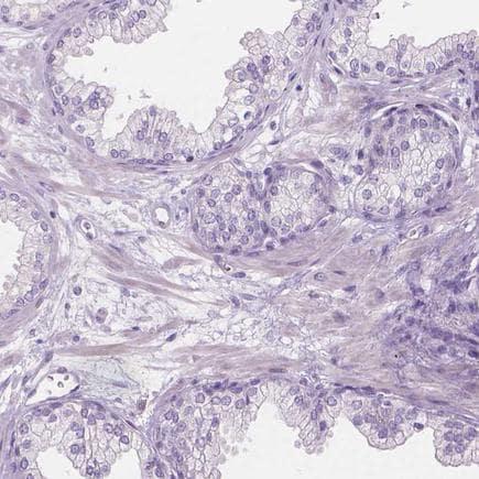 Immunohistochemistry (Formalin/PFA-fixed paraffin-embedded sections) - Anti-CABCOCO1 antibody (ab122716)