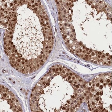 Immunohistochemistry (Formalin/PFA-fixed paraffin-embedded sections) - Anti-SLC7A6OS antibody (ab122727)
