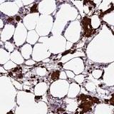 Immunohistochemistry (Formalin/PFA-fixed paraffin-embedded sections) - Anti-HEATR3 antibody (ab122762)