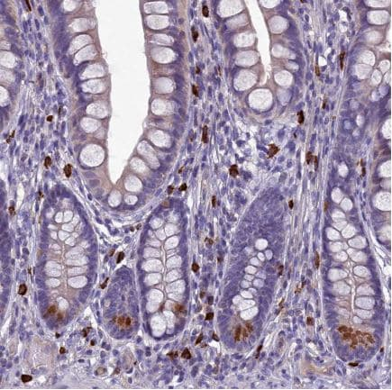 Immunohistochemistry (Formalin/PFA-fixed paraffin-embedded sections) - Anti-C19orf48 antibody (ab122764)