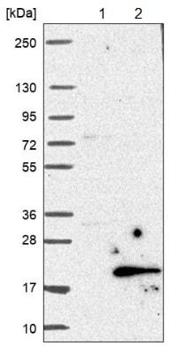 Western blot - Anti-C19orf48 antibody (ab122764)