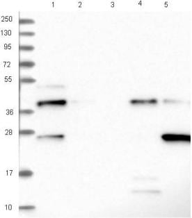Western blot - Anti-C19orf66 antibody (ab122765)