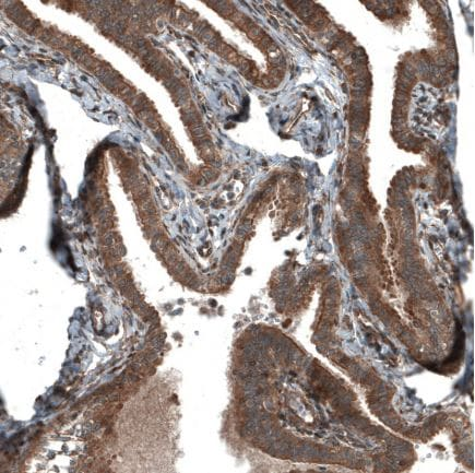 Immunohistochemistry (Formalin/PFA-fixed paraffin-embedded sections) - Anti-C19orf66 antibody (ab122765)