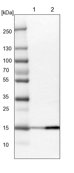 Western blot - Anti-DCTN5 antibody (ab122766)
