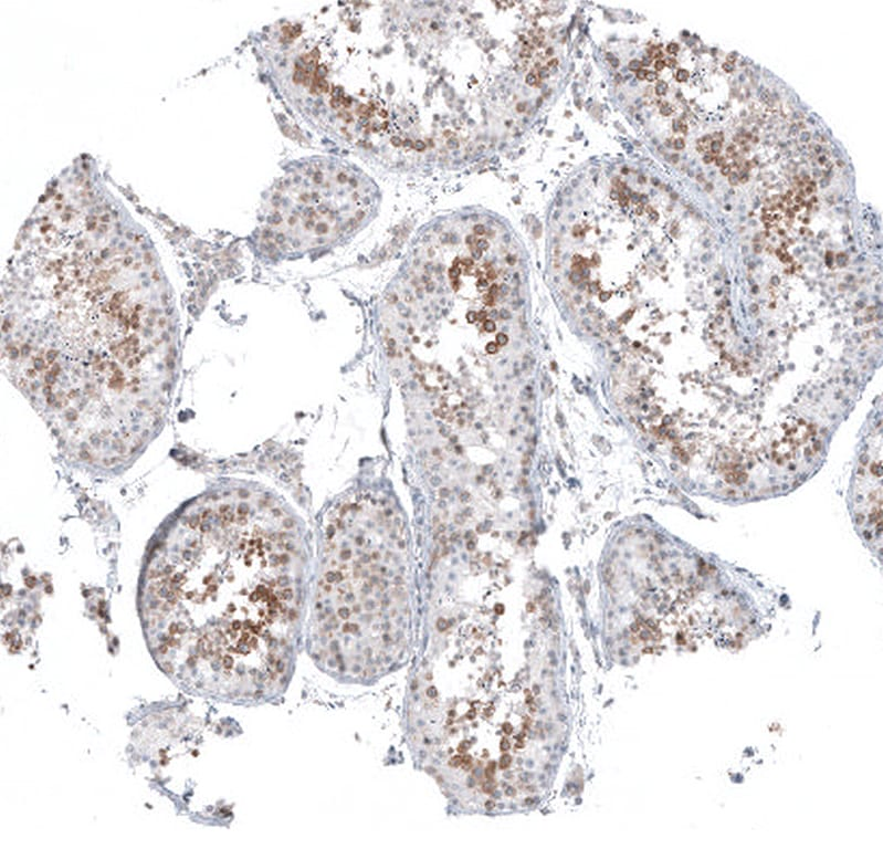 Immunohistochemistry (Formalin/PFA-fixed paraffin-embedded sections) - Anti-SKAP antibody (ab122769)