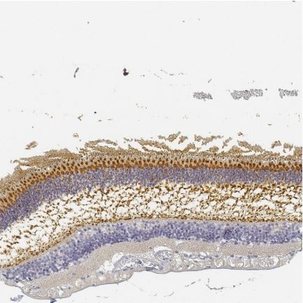 Immunohistochemistry (Formalin/PFA-fixed paraffin-embedded sections) - Anti-RP1 antibody (ab122781)