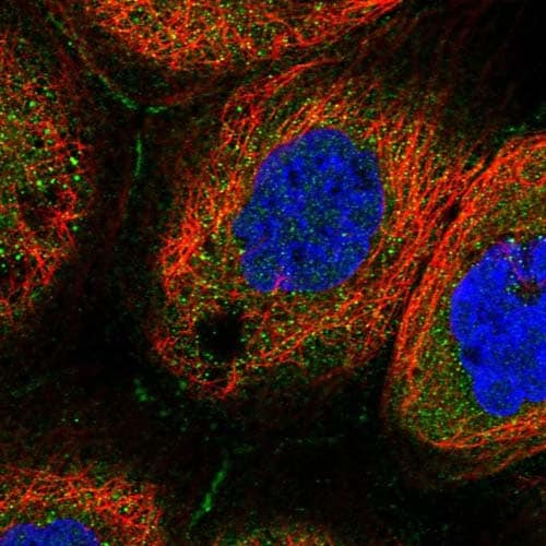 Immunocytochemistry/ Immunofluorescence - Anti-COL19A1 antibody (ab122793)