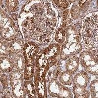 Immunohistochemistry (Formalin/PFA-fixed paraffin-embedded sections) - Anti-SAC3D1 antibody (ab122809)