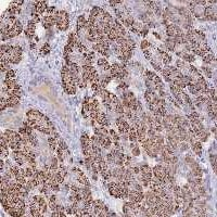 Immunohistochemistry (Formalin/PFA-fixed paraffin-embedded sections) - Anti-WDR17 antibody (ab122813)