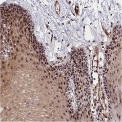 Immunohistochemistry (Formalin/PFA-fixed paraffin-embedded sections) - Anti-PPAN antibody (ab122844)