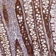 Immunohistochemistry (Formalin/PFA-fixed paraffin-embedded sections) - Anti-TMEM44 antibody (ab122859)