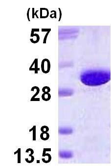 SDS-PAGE - Recombinant Human GGH protein (ab123172)