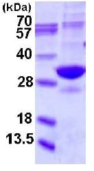 SDS-PAGE - Recombinant Human Proteasome 20S alpha 5/PSMA5 protein (ab123211)