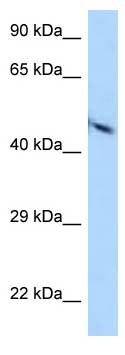 Western blot - Anti-Poliovirus Receptor/PVR antibody (ab123252)